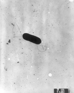 Listeria monocytogenes (forrás: Wikipedia)